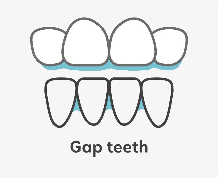 gap teeth